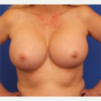 48- year old woman treated with Breast Implant Revision after 3163782