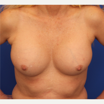 48- year old woman treated with Breast Implant Revision before 3163782