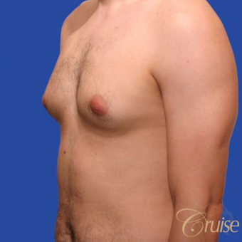 20 year old male had surgery to correct moderate gynecomastia and puffy nipple before 3196790