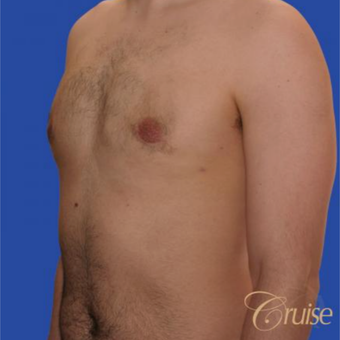 20 year old male had surgery to correct moderate gynecomastia and puffy nipple after 3196790
