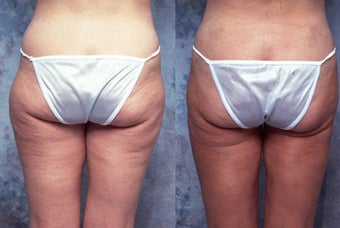 Tumescent body liposuction