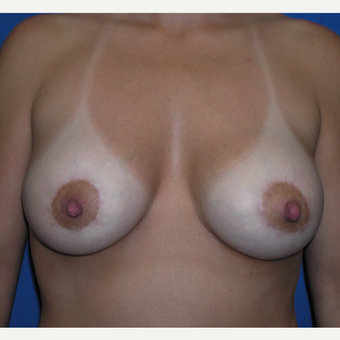 25-34 year old woman treated with Breast Lift with Implants after 2720835