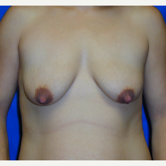 25-34 year old woman treated with Breast Lift with Implants before 2720835