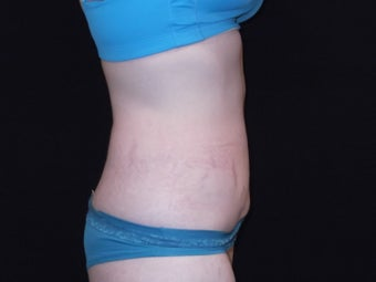 CoolSculpting upper and lower abdomen after 1442025
