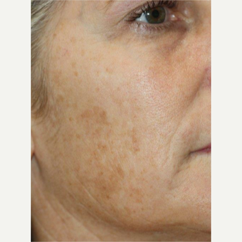 45-54 year old woman treated with Laser Resurfacing before 3174511