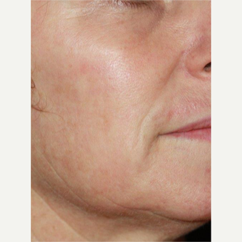 45-54 year old woman treated with Laser Resurfacing after 3174511