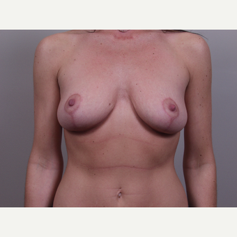 25-34 year old woman treated with Breast Lift after 3769692