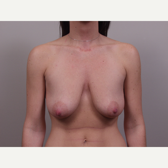 25-34 year old woman treated with Breast Lift before 3769692
