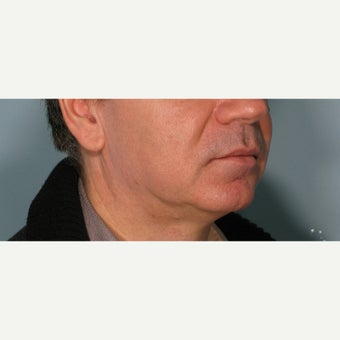 55-64 year old man treated with Ultherapy