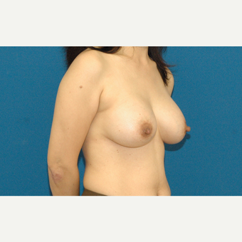 45 year old woman treated with Breast Augmentation after 3208543