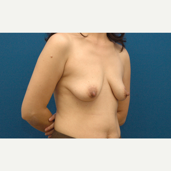 45 year old woman treated with Breast Augmentation before 3208543
