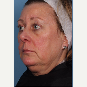 55-64 year old woman treated with CoolSculpting before 2967680