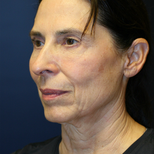 64 year old woman treated with Facelift before 3554093