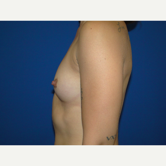 Breast Augmentation with 400 cc Silicone before 3776077