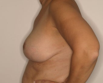 58 Year Old Female, 5ft 3 in, 147 lbs, with 36 HH cup breasts treated for large, sagging breasts. 1515412