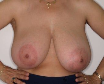 58 Year Old Female, 5ft 3 in, 147 lbs, with 36 HH cup breasts treated for large, sagging breasts. before 1515412