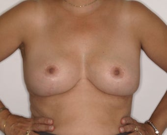 58 Year Old Female, 5ft 3 in, 147 lbs, with 36 HH cup breasts treated for large, sagging breasts. after 1515412
