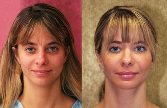facial fat grafting before 232501
