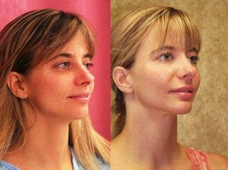facial fat grafting after 232501