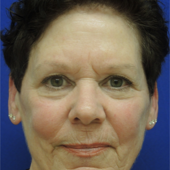 65-74 year old woman treated with Ultherapy after 3466873