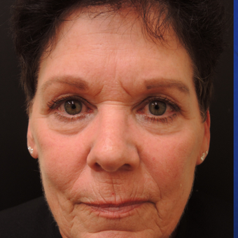 65-74 year old woman treated with Ultherapy before 3466873