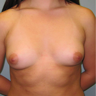 Breast Augmentation before 3467334