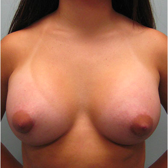 Breast Augmentation after 3467334