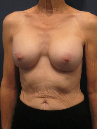 Woman in her 60's interested in achieving better proportionality of her breasts after 1192358