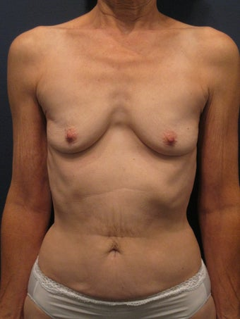 Woman in her 60's interested in achieving better proportionality of her breasts before 1192358
