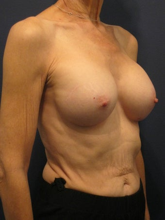 Woman in her 60's interested in achieving better proportionality of her breasts 1192358