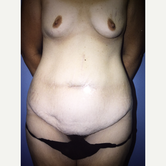 25-34 year old woman treated with Mommy Makeover tummy tuck and breast implant before 3333525