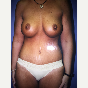 25-34 year old woman treated with Mommy Makeover tummy tuck and breast implant after 3333525