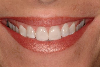 Porcelain Veneers and Whitening