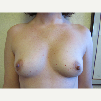 25-34 year old woman treated with Breast Augmentation before 3407180