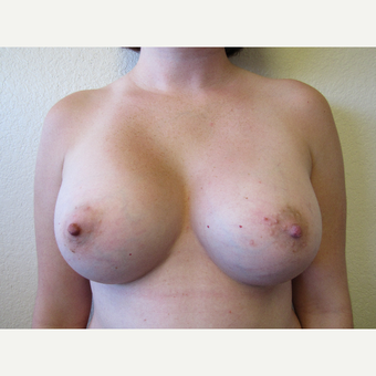 25-34 year old woman treated with Breast Augmentation after 3407180