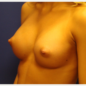 18-24 year old woman treated with Breast Implants after 3670831