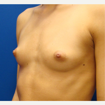 18-24 year old woman treated with Breast Implants before 3670831