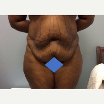 45-54 year old woman treated with Tummy Tuck before 2566013