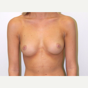 18-24 year old woman treated with Breast Augmentation before 3378096