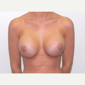 18-24 year old woman treated with Breast Augmentation after 3378096