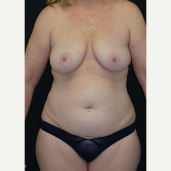 45-54 year old woman treated with Mommy Makeover before 3306125