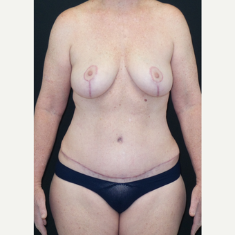 45-54 year old woman treated with Mommy Makeover after 3306125