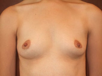 Bilateral Breast Augmentation with Silicone Implants before 1197016