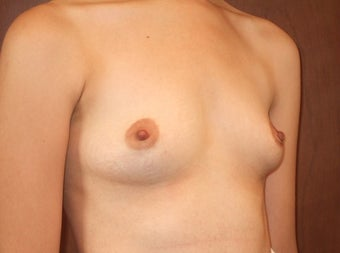 Bilateral Breast Augmentation with Silicone Implants 1197016