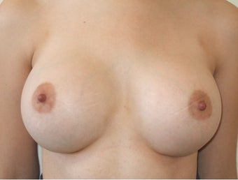 Bilateral Breast Augmentation with Silicone Implants after 1197016
