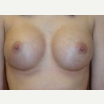 25-34 year old woman treated with Breast Implants after 3088612