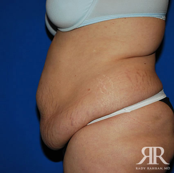 Tummy Tuck before 1285632