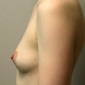 Breast Augmentation before 3680778