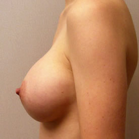 Breast Augmentation after 3680778