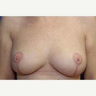45 year old woman with a bilateral breast reduction after 3060475